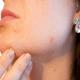 Azelaic Acid for Skin Lightening