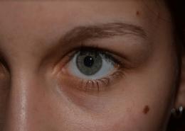 Birthmark Skin Whitening
