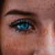 Freckle Removal Creams